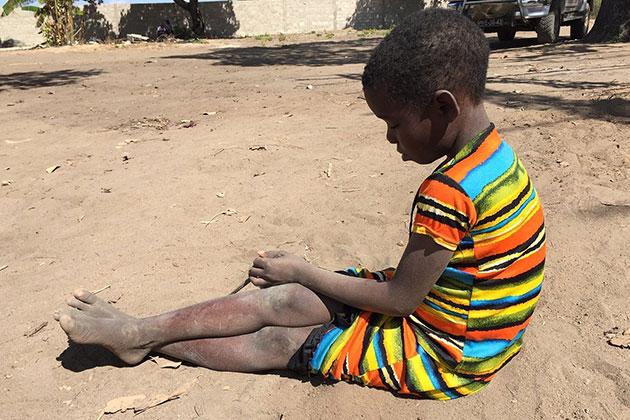 Pobreza multidimensional de la infancia